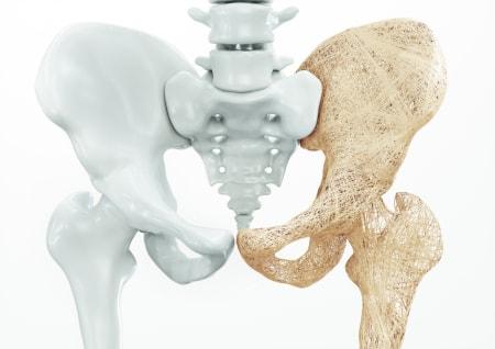 Dorsoo blog menopauze rugklachten osteoporose
