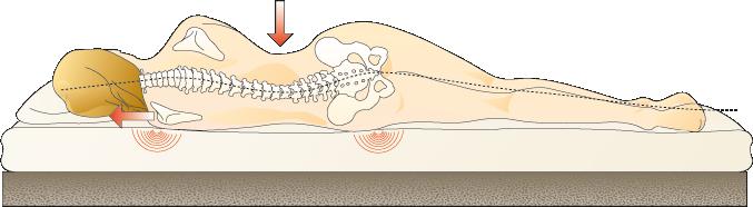 Dorsoo - Rugpijn - Touwbrugeffect