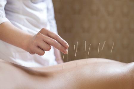 acupunctuur behandeling artrose