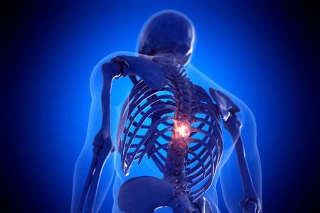artrose pijn symptomen