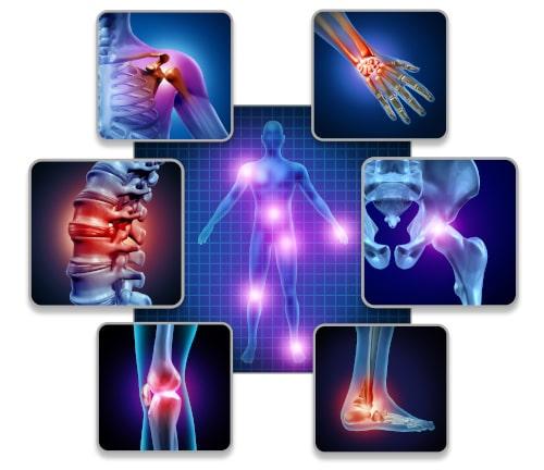 Fibromyalgie klachten symptomen