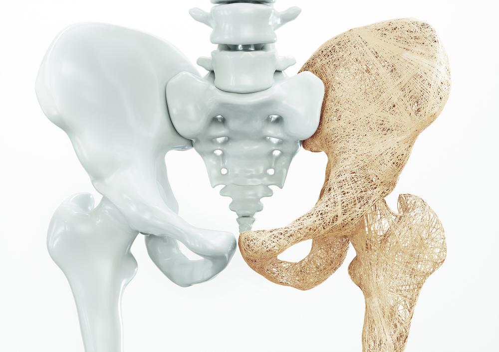 Osteoporose - Dorsoo