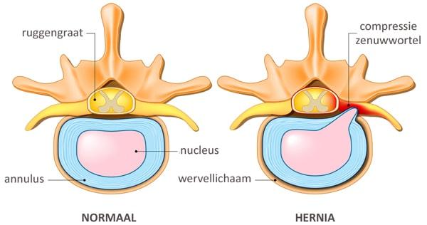 wat is een hernia